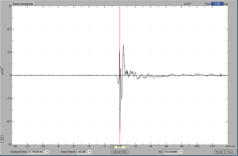 005IR xvr alignment 1st ap2 filter