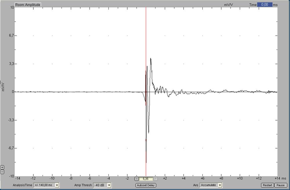 007 IR xvr alignment 2nd ap2 filter